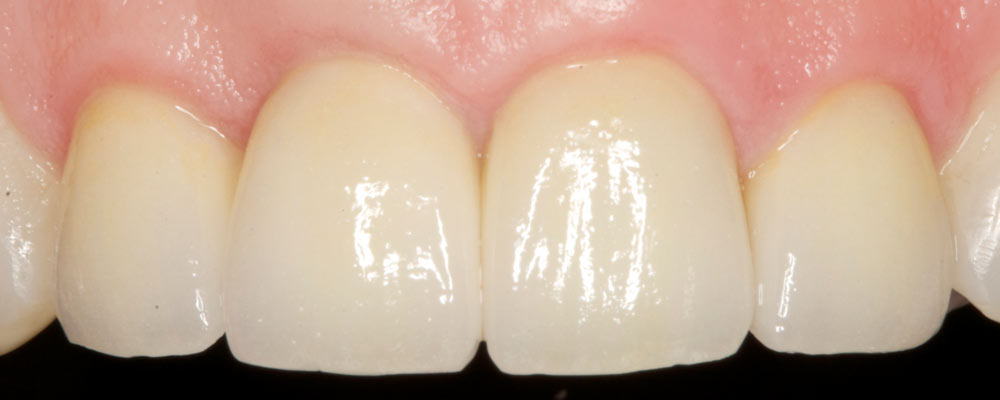 Smile Zone Implants